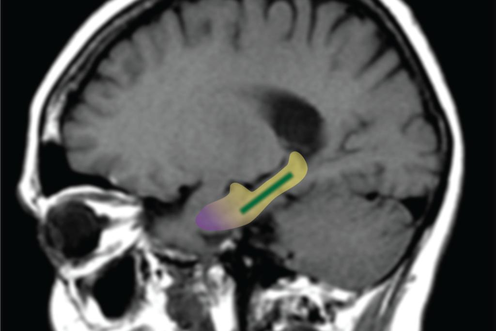 Região do hipocampo (em destaque)